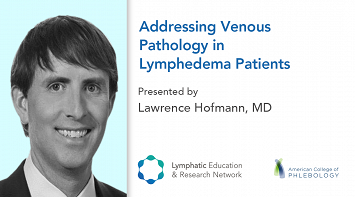 Addressing Venous Pathology in Lymphedema Patients thumbnail Photo