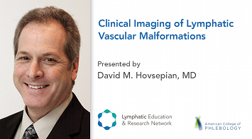 Clinical Imaging of Lymphatic Vascular Malformations thumbnail Photo
