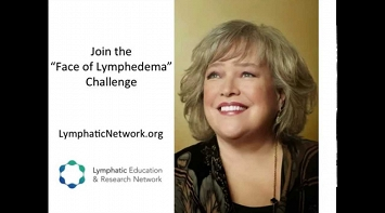 LE&RN Spokesperson Kathy Bates Fights for Lymphedema Research & Awareness thumbnail Photo