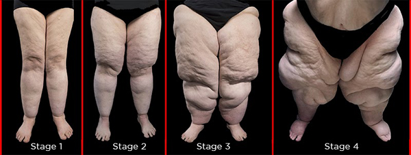 Lipedema, the disease they call FAT